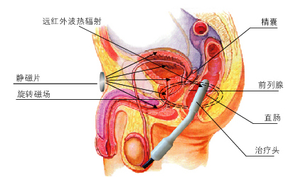 曼迪前列腺治疗仪 治疗机理