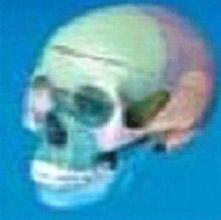 颅骨分离模型 KAR/11118