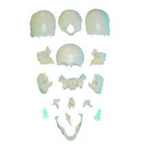 分离头颅骨散骨模型 KAR/11117-2