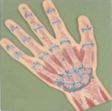 手关节剖面模型 KAR/11204