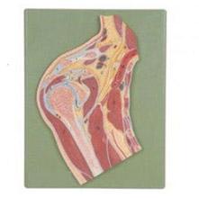肩关节剖面模型 KAR/11202