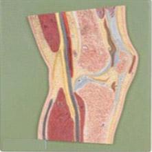 髋关节剖面模型 KAR/11205