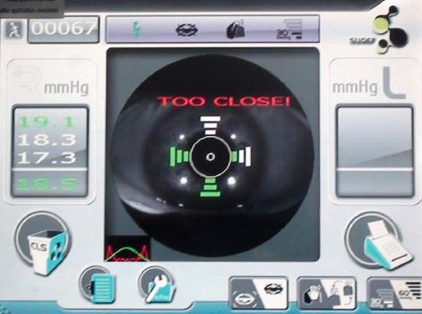 索维非接触眼压计 SW-5000