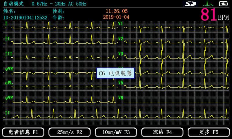 心电图机 EM-301心电图机 数字心电图机